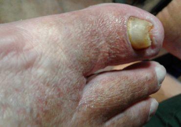 Urastao nokat - medicinski pedikir