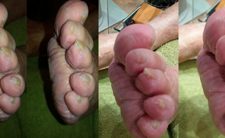 Gljivični nokti