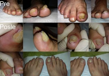Urasli gljivični nokti kod dijabetičara - pre i posle