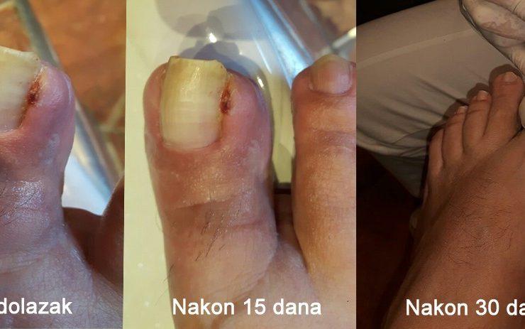 Dijabetičarski nokat